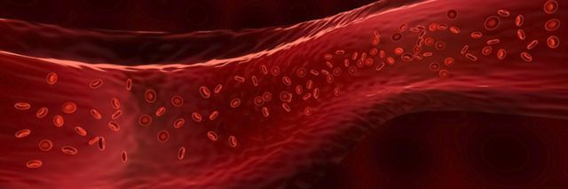 New Evidence Suggests COVID-19 May Actually Be a Blood Vessel Disease