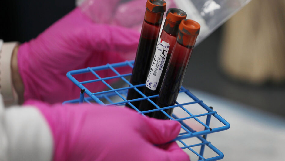 Blood test may determine severe COVID-19 cases, risk of death: study