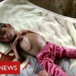 Millions of children face starvation in Yemen warns United Nations – BBC News